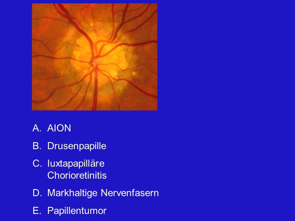 A.AION B.Drusenpapille C.Iuxtapapilläre Chorioretinitis D.Markhaltige Nervenfasern E.Papillentumor Dies ist eine typische Drusenpapille.Man erkennt zahlreiche Drusen auf der Papille.