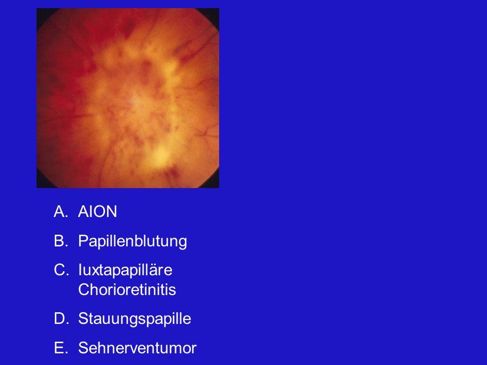 A.AION B.Papillenblutung C.Iuxtapapilläre Chorioretinitis D.Stauungspapille E.Sehnerventumor