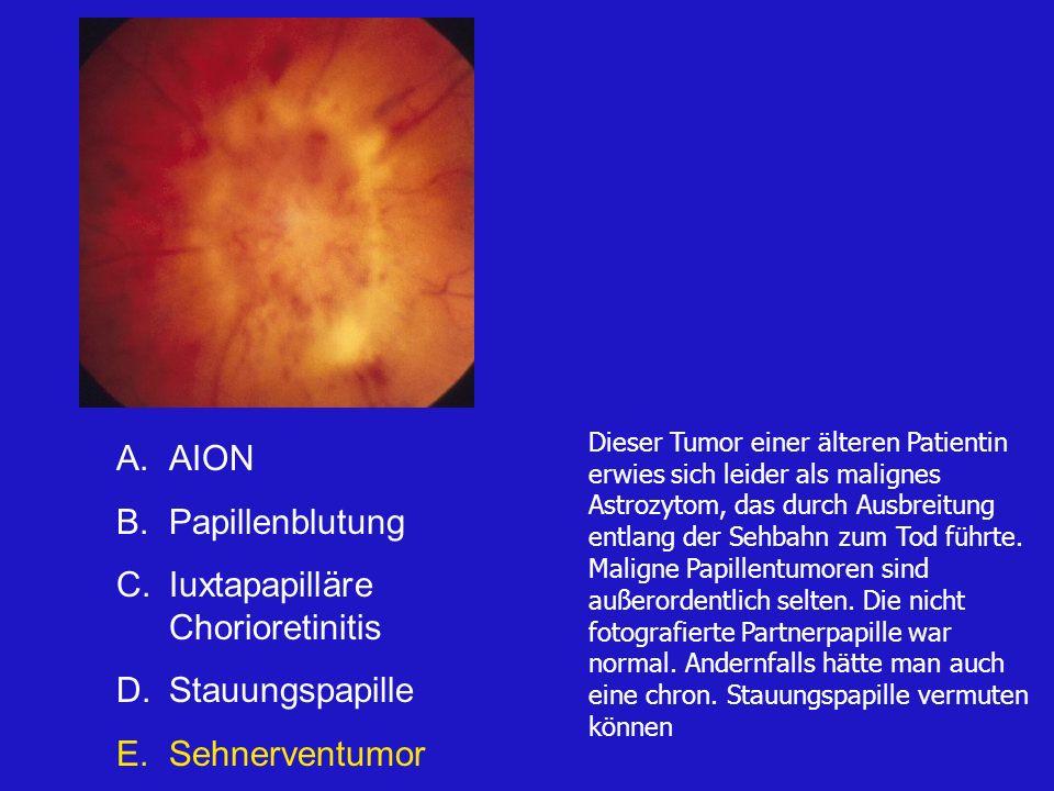 Dieser Tumor einer älteren Patientin erwies sich leider als malignes Astrozytom, das durch Ausbreitung entlang der Sehbahn zum Tod führte.