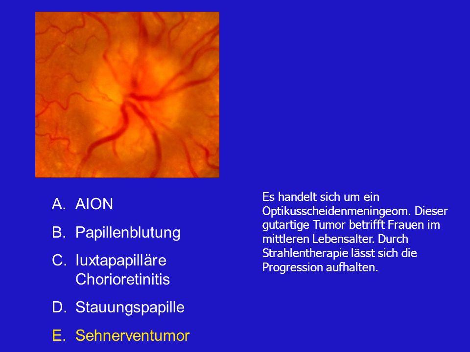 A.AION B.Papillenblutung C.Iuxtapapilläre Chorioretinitis D.Stauungspapille E.Sehnerventumor Es handelt sich um ein Optikusscheidenmeningeom.