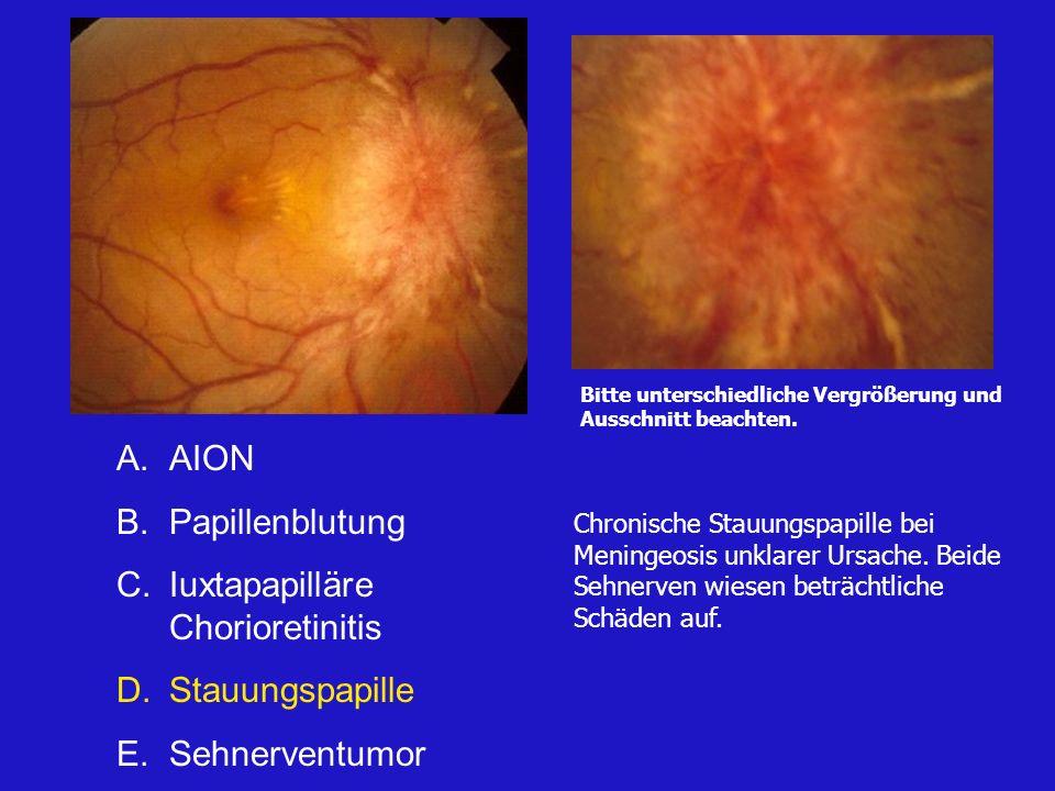 A.Glaukom B.Papillenblutung C.Iuxtapapilläre Chorioretinitis D.Stauungspapille E.Sehnerventumor