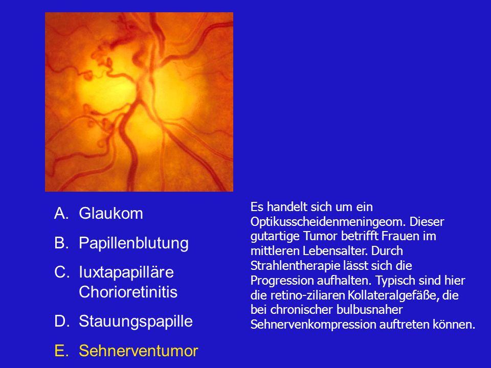 A.Glaukom B.Kolobom C.Iuxtapapilläre Chorioretinitis D.Stauungspapille E.Papillentumor