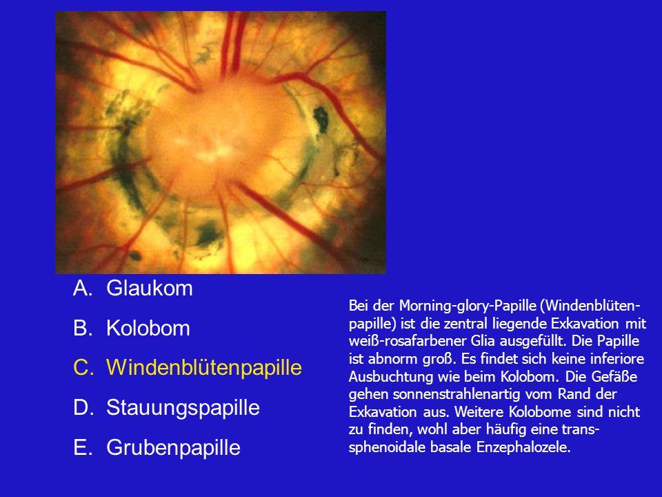 A.Glaukom B.Kolobom C.Windenblütenpapille D.Stauungspapille E.Grubenpapille Bei der Morning-glory-Papille (Windenblüten- papille) ist die zentral liegende Exkavation mit weiß-rosafarbener Glia ausgefüllt.