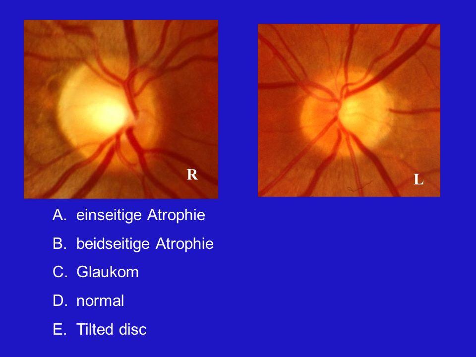 A.einseitige Atrophie B.beidseitige Atrophie C.Glaukom D.normal E.Tilted disc R L Um hier richtig zu antworten, muss man wissen, dass die Patientin eine homonyme Hemianopsie nach rechts hat, Folge eines Traumas.