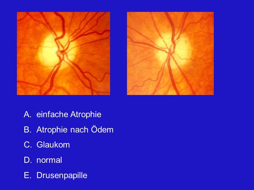 A.einfache Atrophie B.Atrophie nach Ödem C.Glaukom D.normal E.Drusenpapille Beide Papillen sind eindeutig blass.
