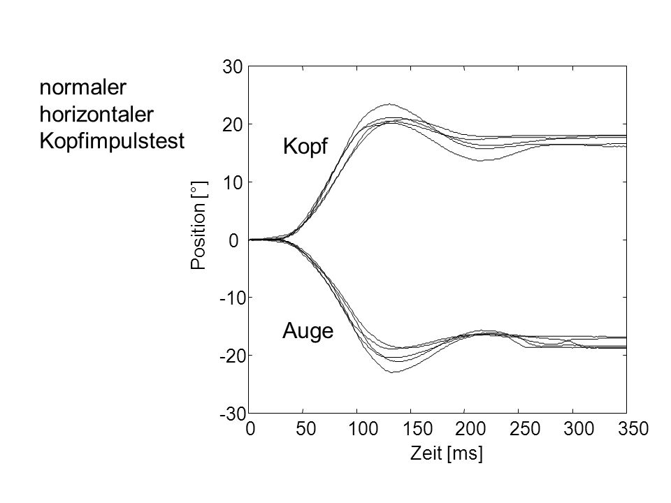 050100150200250300350 -30 -20 -10 0 10 20 30 Zeit [ms] Position [°] Kopf Auge normaler horizontaler Kopfimpulstest