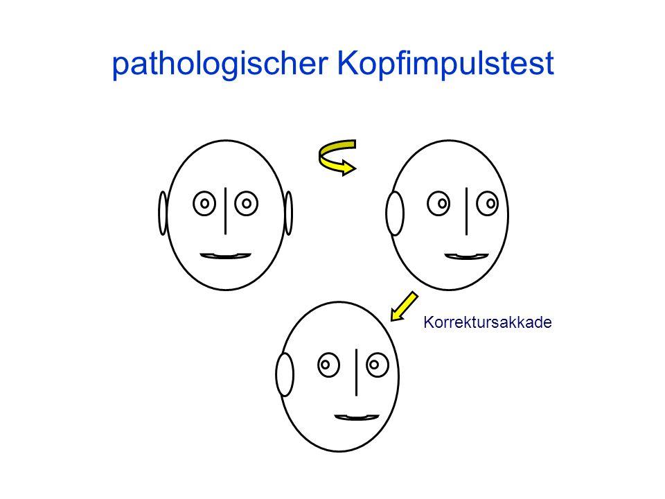 pathologischer Kopfimpulstest Korrektursakkade