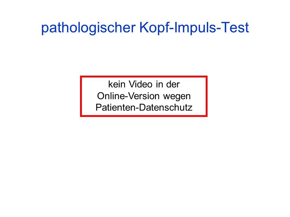 pathologischer Kopf-Impuls-Test kein Video in der Online-Version wegen Patienten-Datenschutz