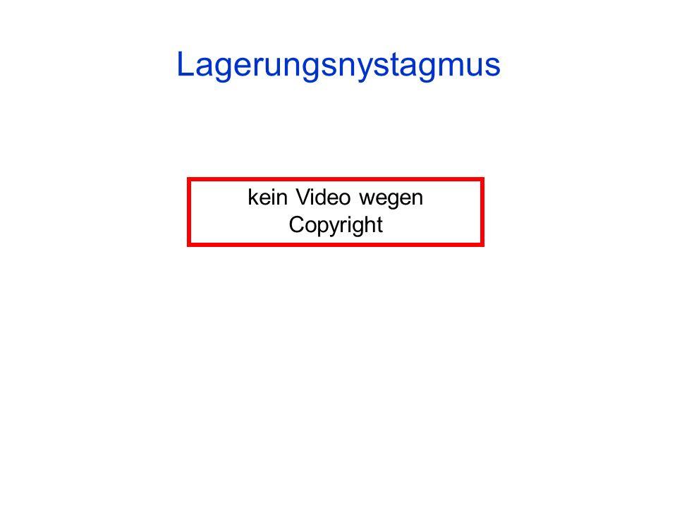 Lagerungsnystagmus kein Video wegen Copyright
