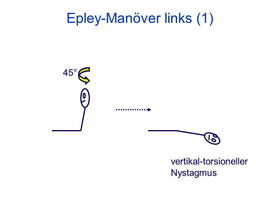 Epley-Manöver links (1) 45° vertikal-torsioneller Nystagmus