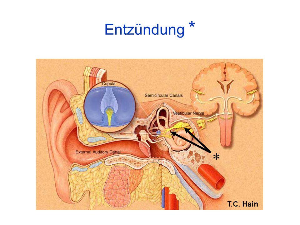Leigh & Zee 1999 (modified) superior division of the vestibular nerve or superior vestibular artery inferior division of the vestibular nerve or vestibulo-cochlear artery