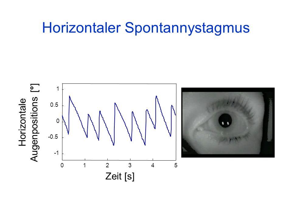 Horizontaler Spontannystagmus 012345 -0.5 0 0.5 1 Zeit [s] Horizontale Augenpositions [°]