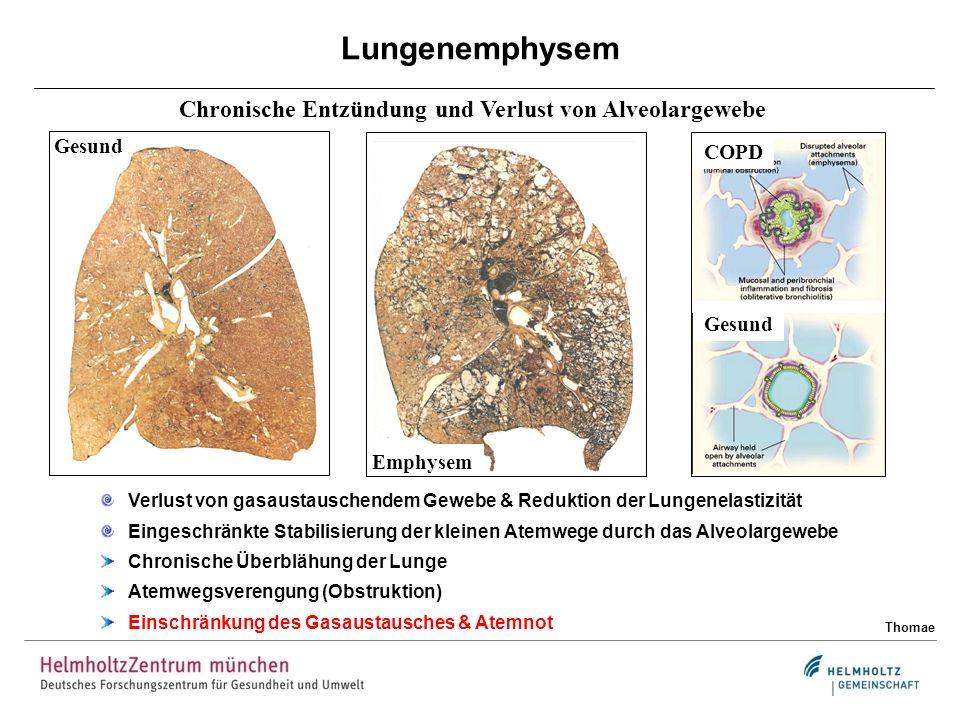Gesund Lungenemphysem Thomae Chronische Entzündung und Verlust von Alveolargewebe Verlust von gasaustauschendem Gewebe & Reduktion der Lungenelastizit