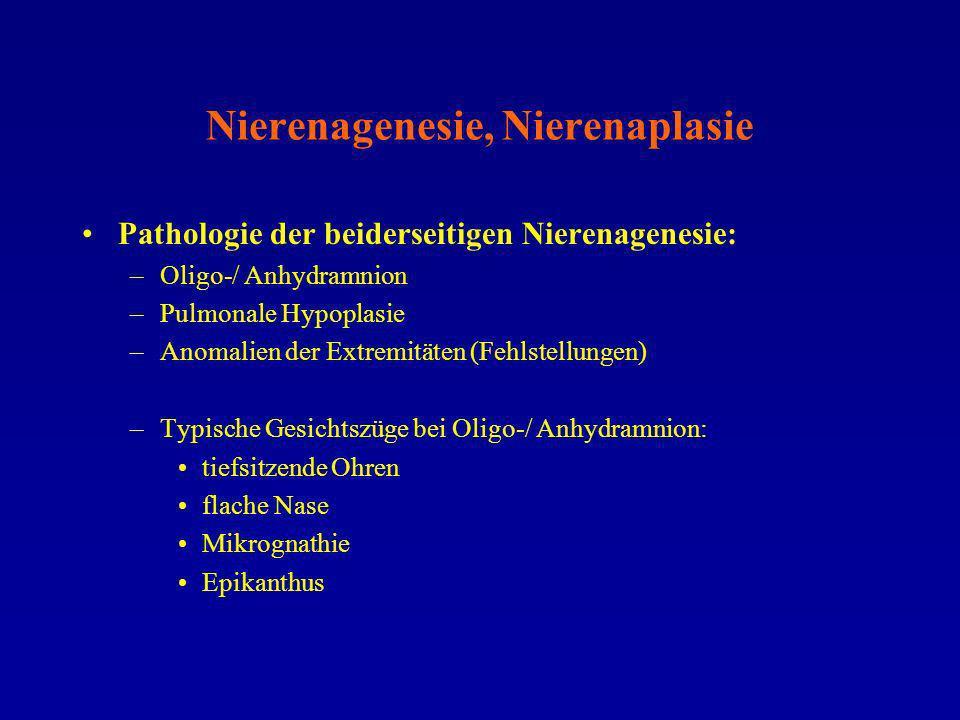 Nierenagenesie, Nierenaplasie Pathologie der beiderseitigen Nierenagenesie: –Oligo-/ Anhydramnion –Pulmonale Hypoplasie –Anomalien der Extremitäten (F