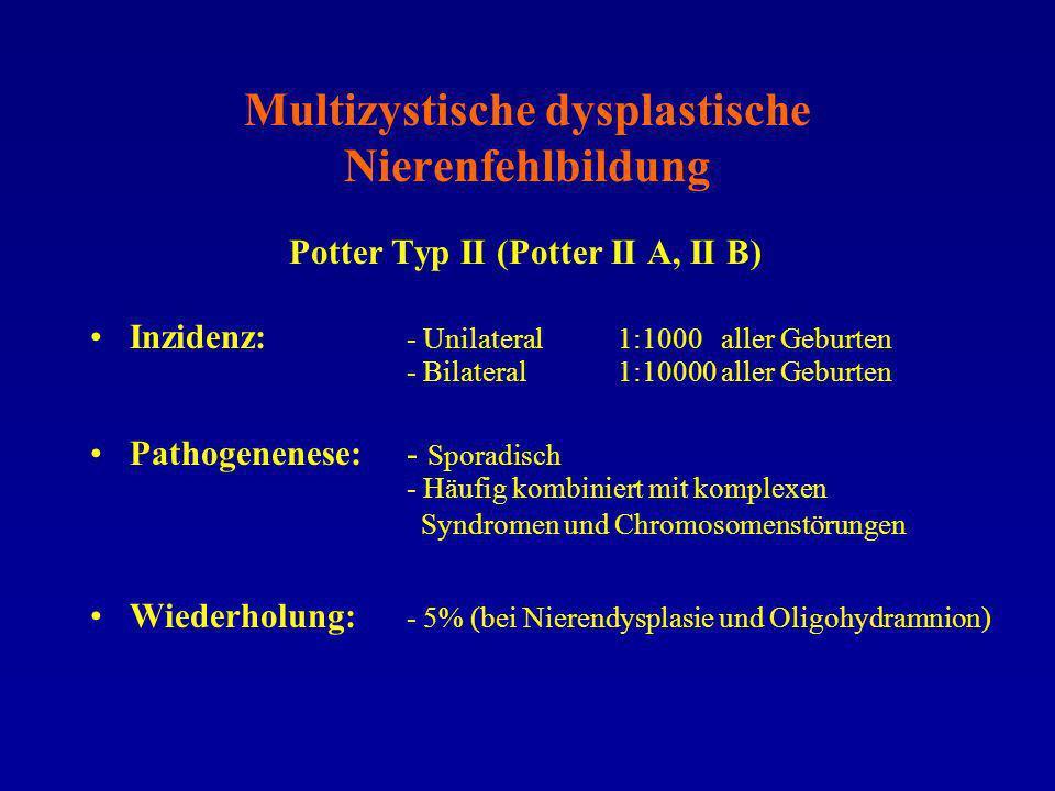 Multizystische dysplastische Nierenfehlbildung Potter Typ II (Potter II A, II B) Inzidenz: - Unilateral 1:1000 aller Geburten - Bilateral1:10000 aller