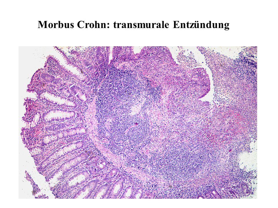 Morbus Crohn: transmurale Entzündung