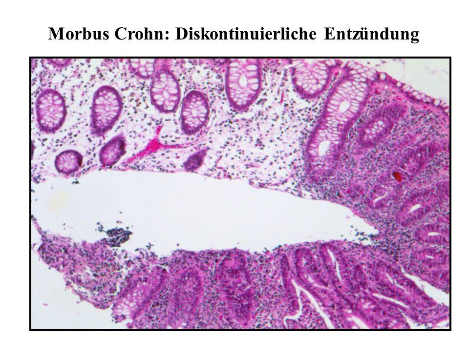 Morbus Crohn: Diskontinuierliche Entzündung