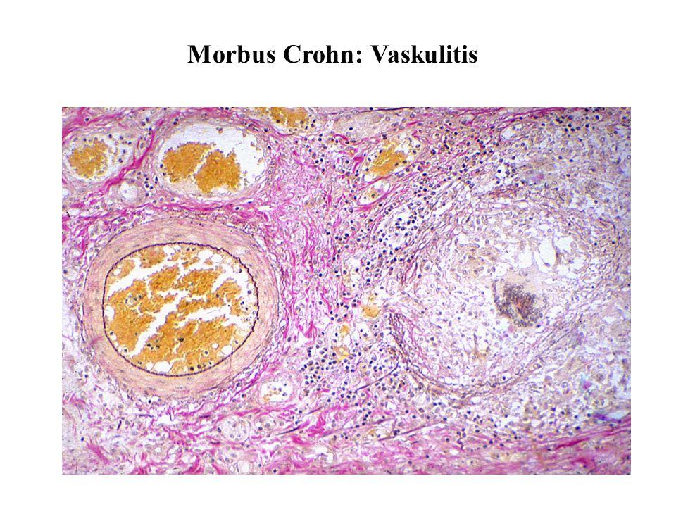Morbus Crohn: Vaskulitis