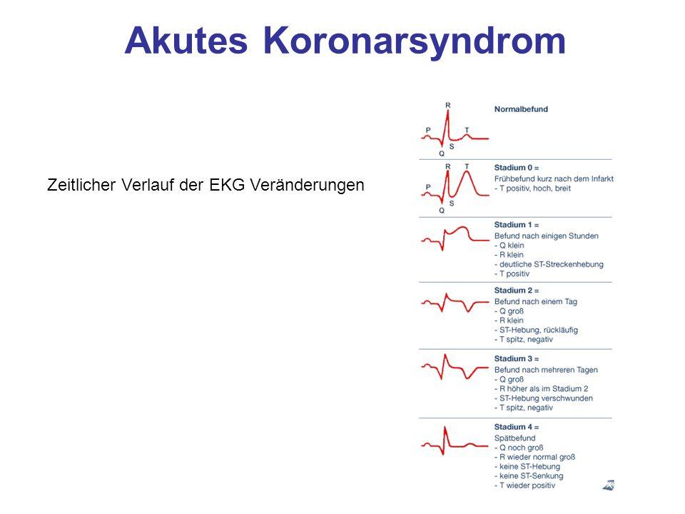 Akutes Koronarsyndrom Zeitlicher Verlauf der EKG Veränderungen