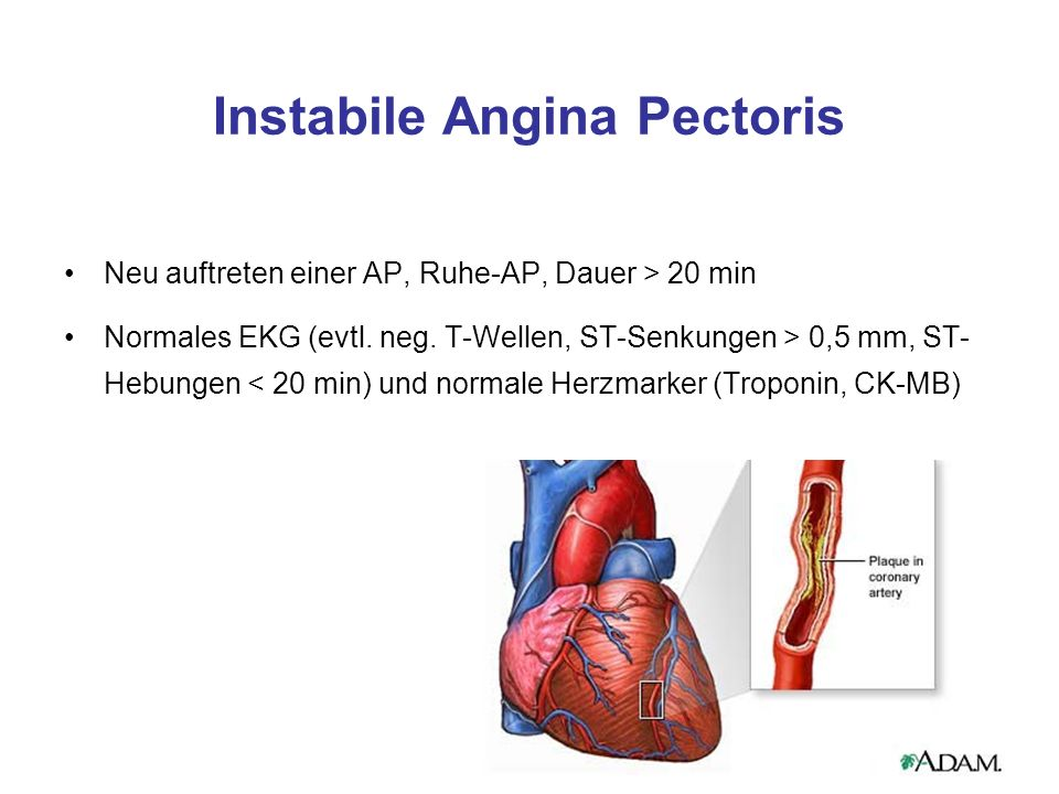 Instabile Angina Pectoris Neu auftreten einer AP, Ruhe-AP, Dauer > 20 min Normales EKG (evtl.