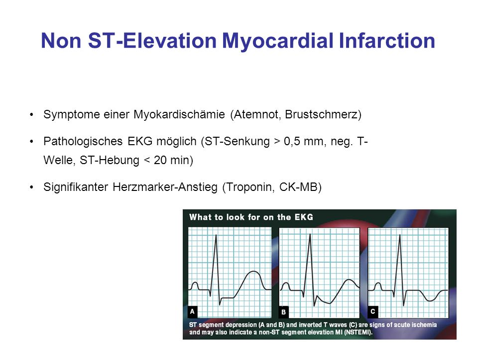 ST-Elevation Myocardial Infarction Symptome einer Myokardischämie (Atemnot, Brustschmerz) Pathologisches EKG (ST-Streckenhebung von 0,1 mV in mindestens zwei zusammenhängenden Extremitätenableitungen, Oder 0,2 mV in mindestens zwei zusammenhängenden Brustwandableitungen) Linksschenkelblock mit infarkttypischer Symptomatik ( keine ST- Segmentanalyse möglich) Signifikanter Herzmarker-Anstieg (Troponin, CK-MB)