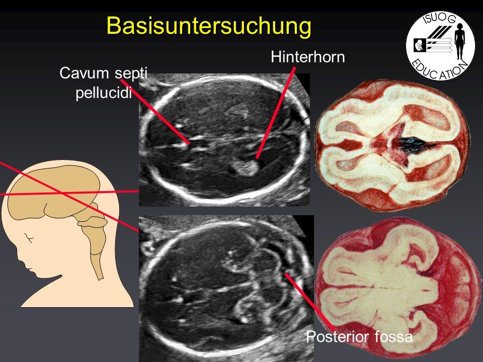 Basisuntersuchung Cavum septi pellucidi Hinterhorn Posterior fossa