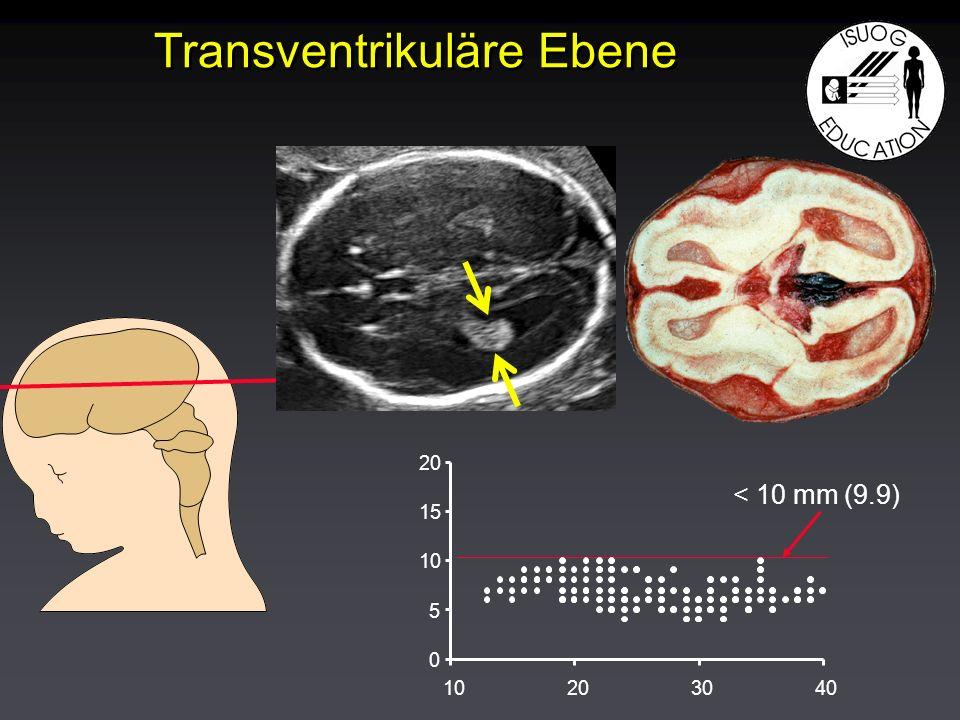 Transventrikuläre Ebene < 10 mm (9.9) 0 5 10 15 20 10203040