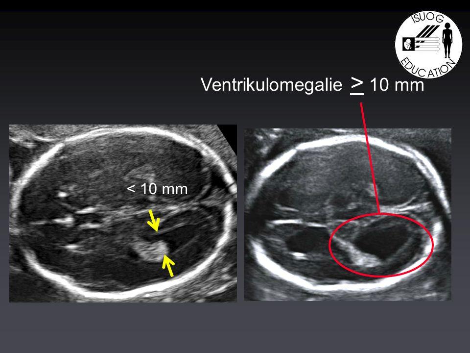 Ventrikulomegalie > 10 mm < 10 mm