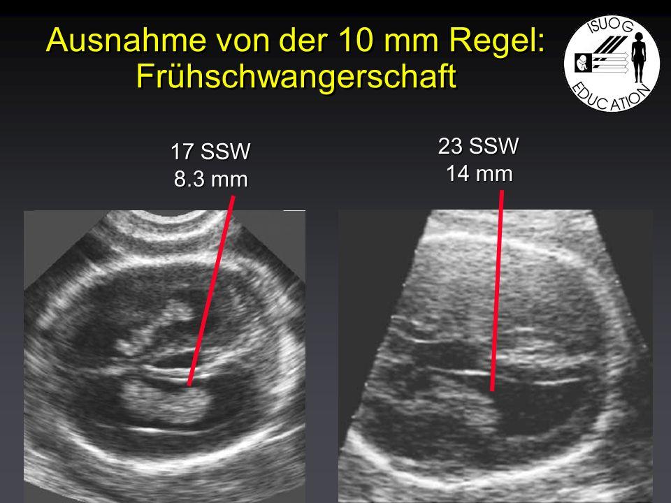 Ausnahme von der 10 mm Regel: Frühschwangerschaft 17 SSW 8.3 mm 23 SSW 14 mm