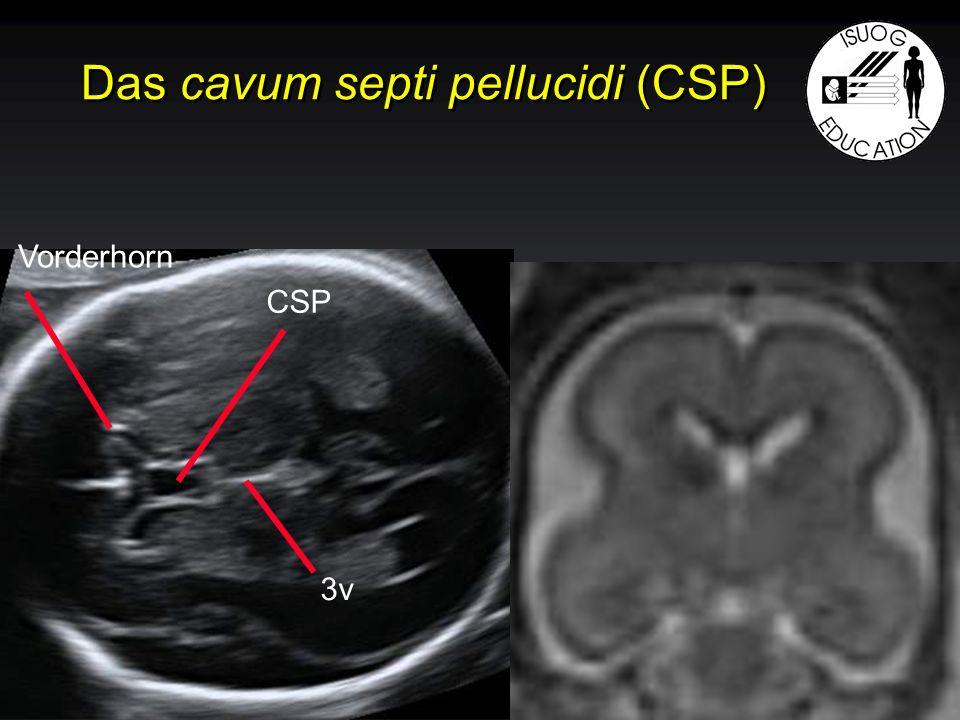 Das cavum septi pellucidi (CSP) Vorderhorn CSP 3v