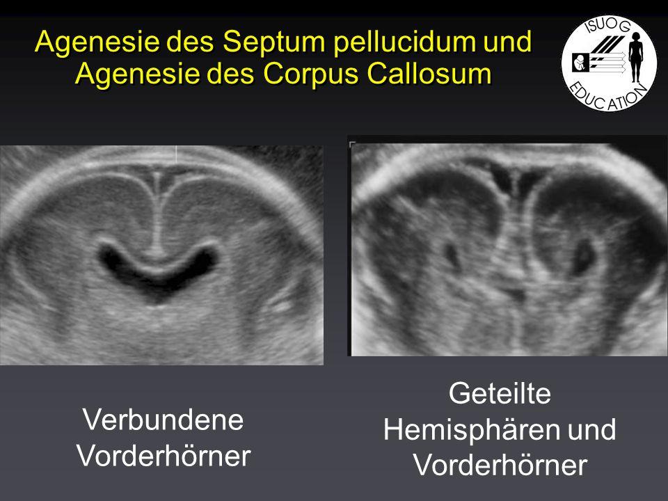 Agenesie des Septum pellucidum und Agenesie des Corpus Callosum Verbundene Vorderhörner Geteilte Hemisphären und Vorderhörner