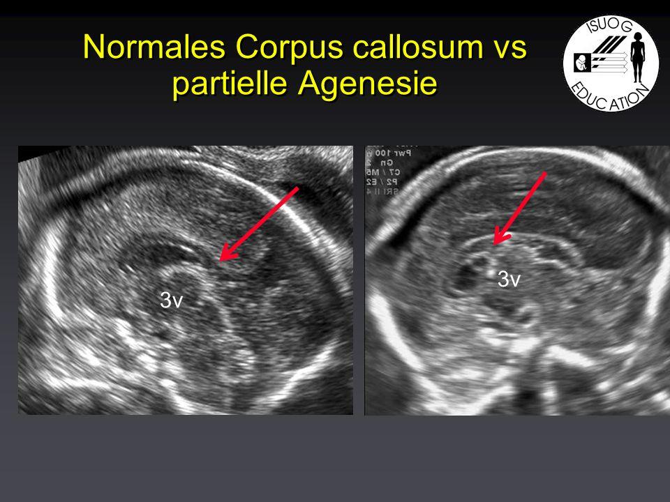 Normales Corpus callosum vs partielle Agenesie 3v