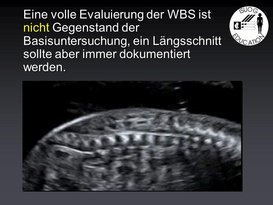 Eine volle Evaluierung der WBS ist nicht Gegenstand der Basisuntersuchung, ein Längsschnitt sollte aber immer dokumentiert werden.