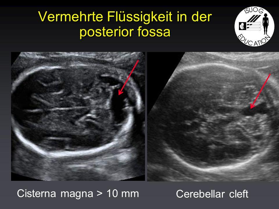 Vermehrte Flüssigkeit in der posterior fossa Cisterna magna > 10 mm Cerebellar cleft
