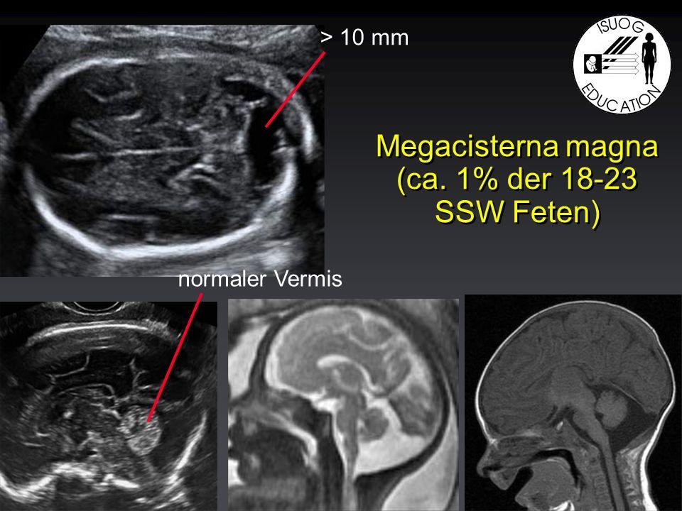 Megacisterna magna (ca. 1% der 18-23 SSW Feten) > 10 mm normaler Vermis