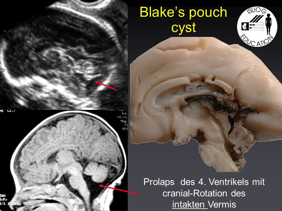 Blakes pouch cyst Prolaps des 4. Ventrikels mit cranial-Rotation des intakten Vermis