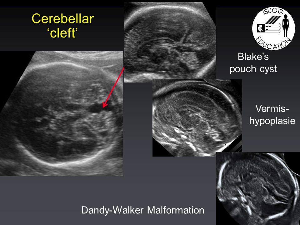 Cerebellar cleft Blakes pouch cyst Vermis- hypoplasie Dandy-Walker Malformation