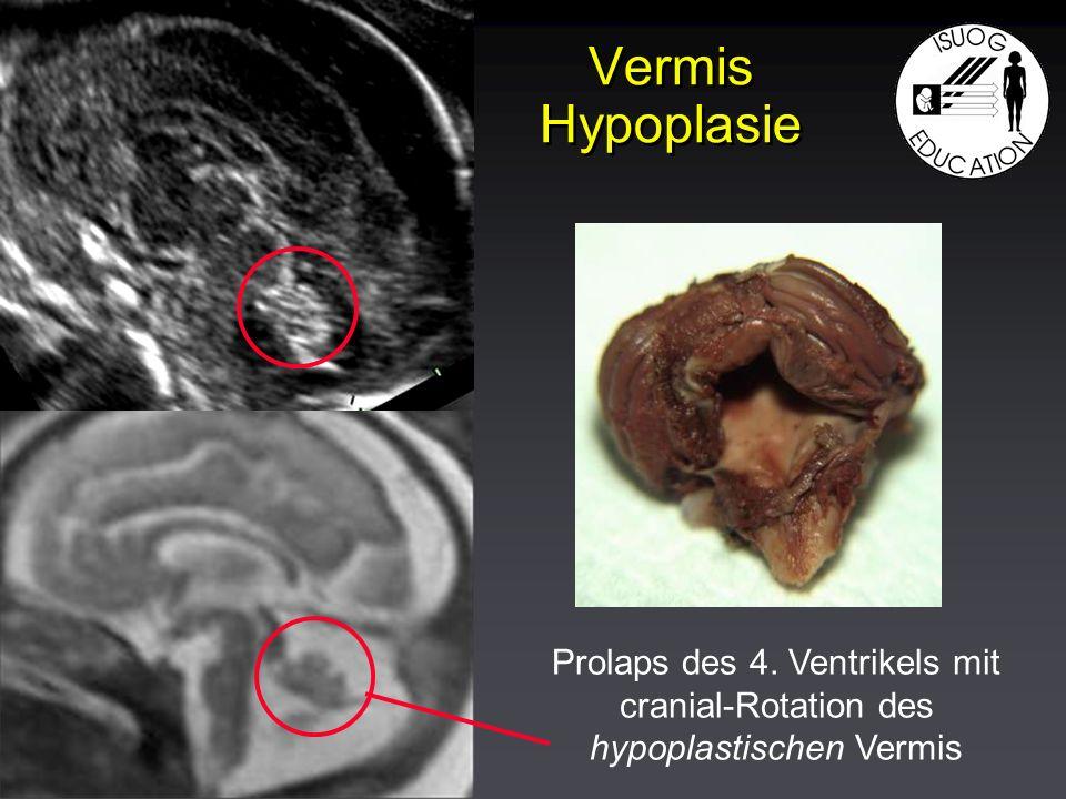 Vermis Hypoplasie Prolaps des 4. Ventrikels mit cranial-Rotation des hypoplastischen Vermis