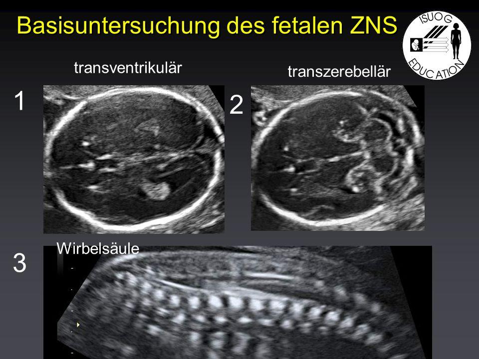 Basisuntersuchung des fetalen ZNS 1 2 3 transventrikulär transzerebellär Wirbelsäule