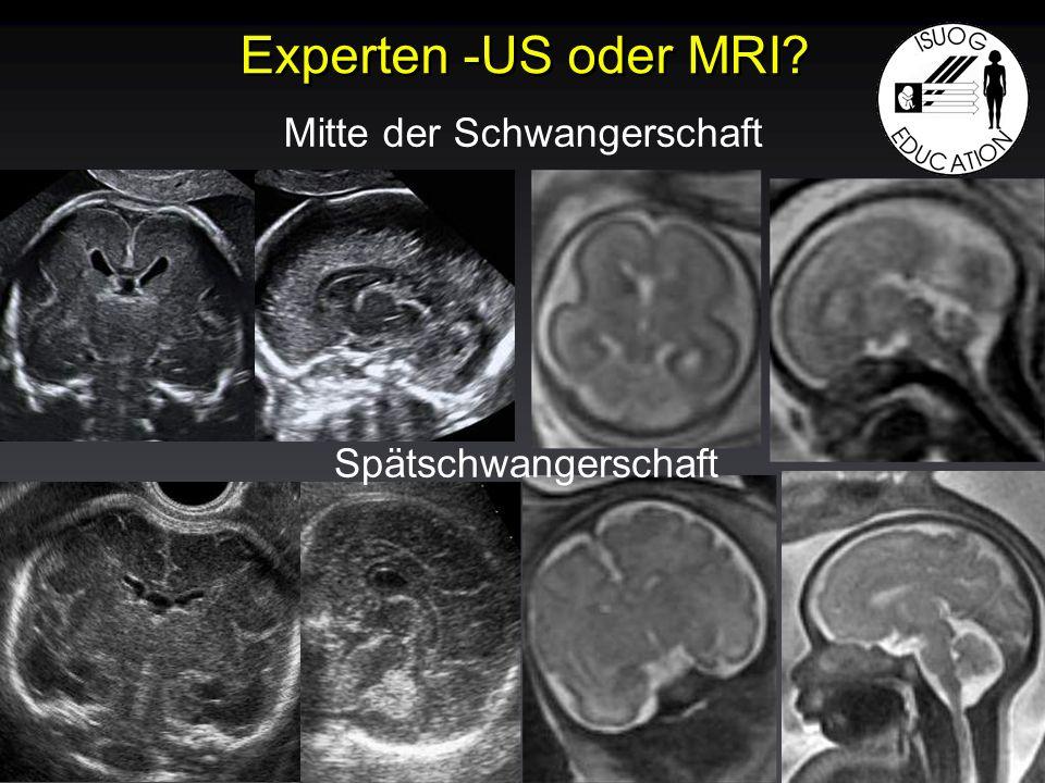 Experten -US oder MRI? Mitte der Schwangerschaft Spätschwangerschaft