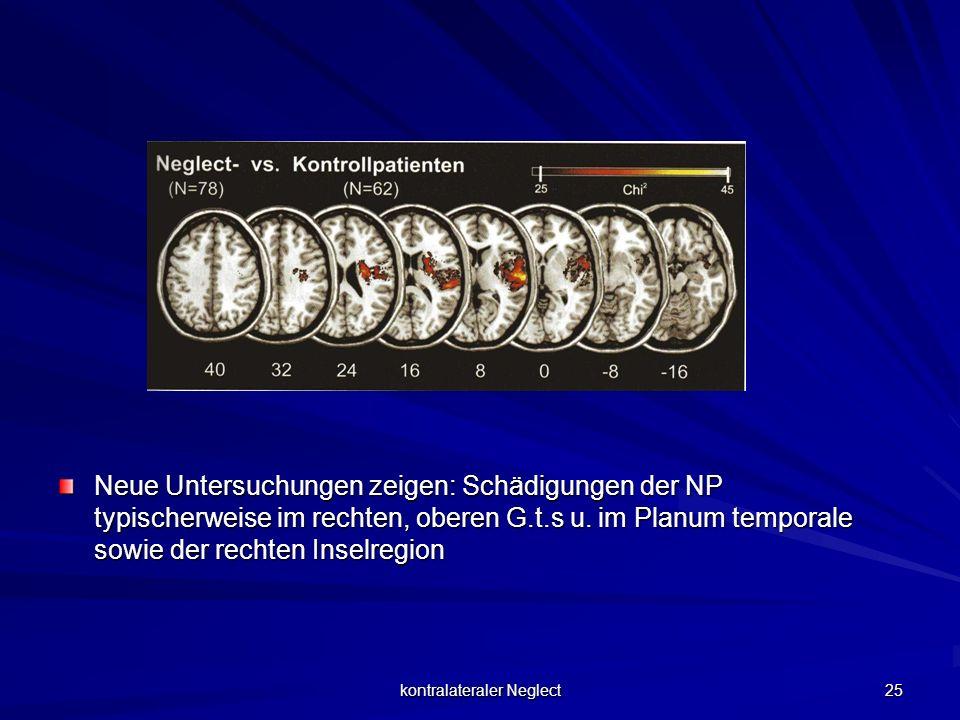 kontralateraler Neglect 25 Neue Untersuchungen zeigen: Schädigungen der NP typischerweise im rechten, oberen G.t.s u. im Planum temporale sowie der re