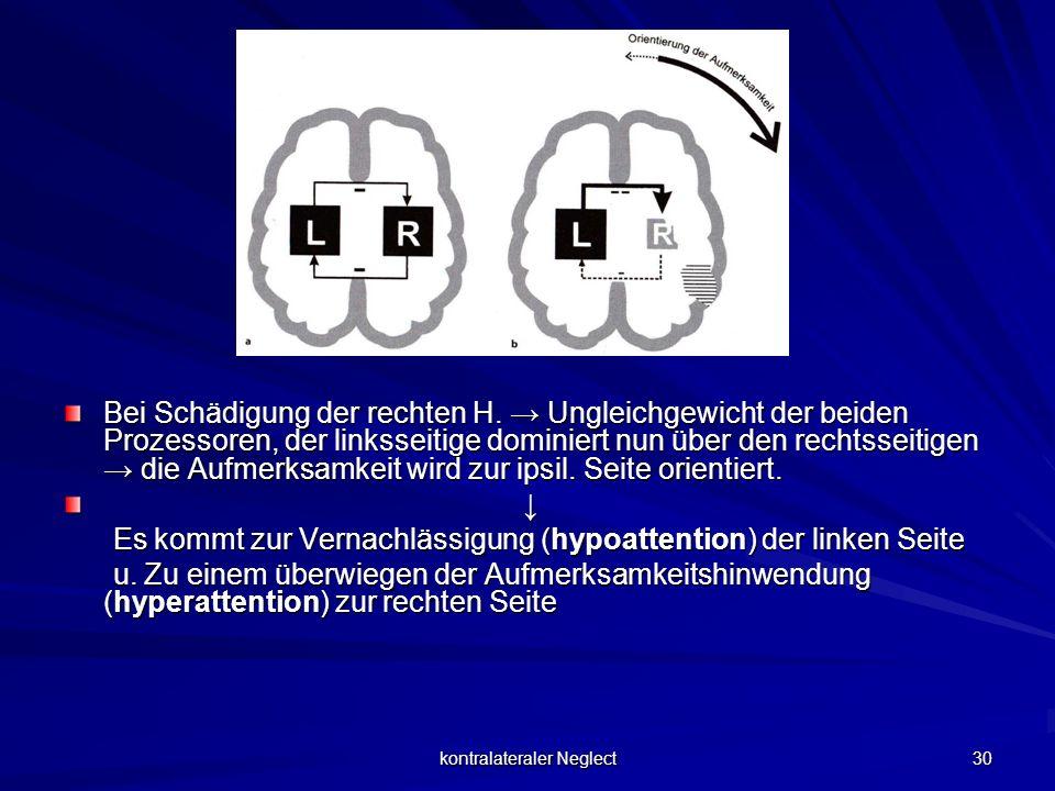 kontralateraler Neglect 30 Bei Schädigung der rechten H. Ungleichgewicht der beiden Prozessoren, der linksseitige dominiert nun über den rechtsseitige