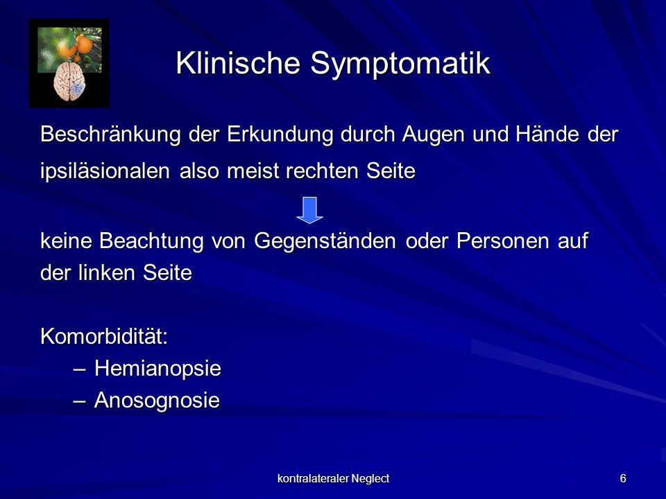 kontralateraler Neglect 6 Klinische Symptomatik Beschränkung der Erkundung durch Augen und Hände der ipsiläsionalen also meist rechten Seite keine Bea