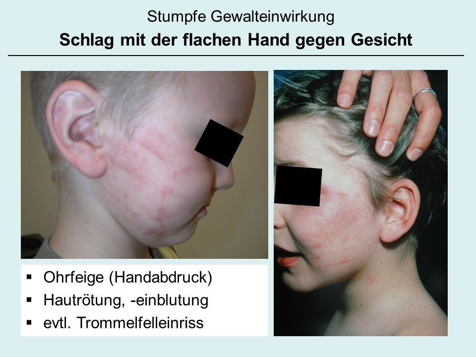 Schlag mit der flachen Hand gegen Gesicht Ohrfeige (Handabdruck) Hautrötung, -einblutung evtl. Trommelfelleinriss