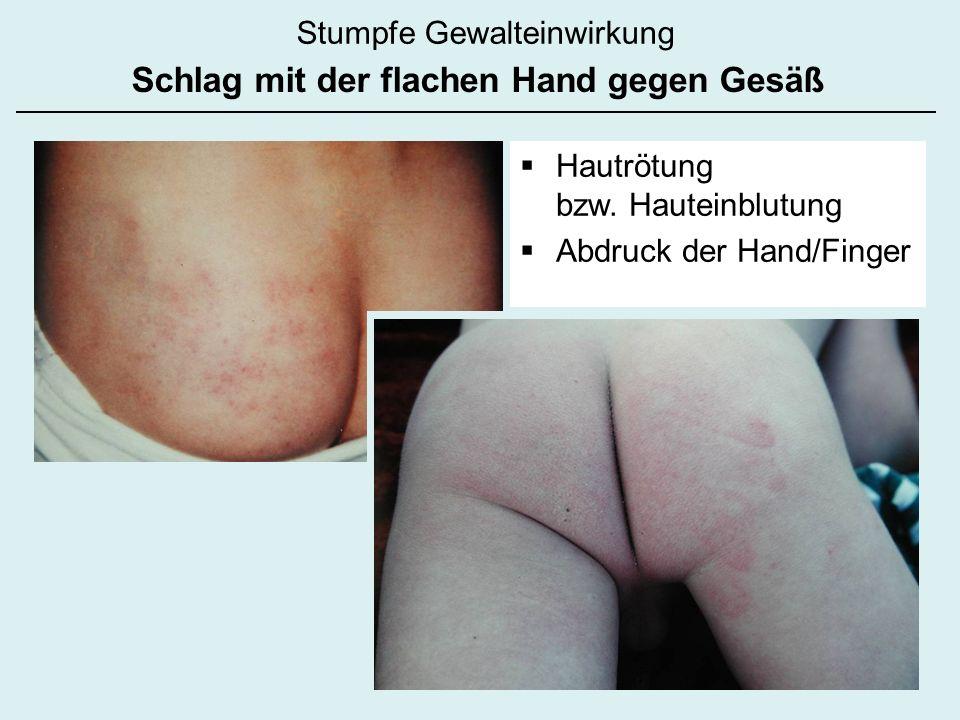 Stumpfe Gewalteinwirkung Schlag mit der flachen Hand gegen Gesäß Hautrötung bzw. Hauteinblutung Abdruck der Hand/Finger