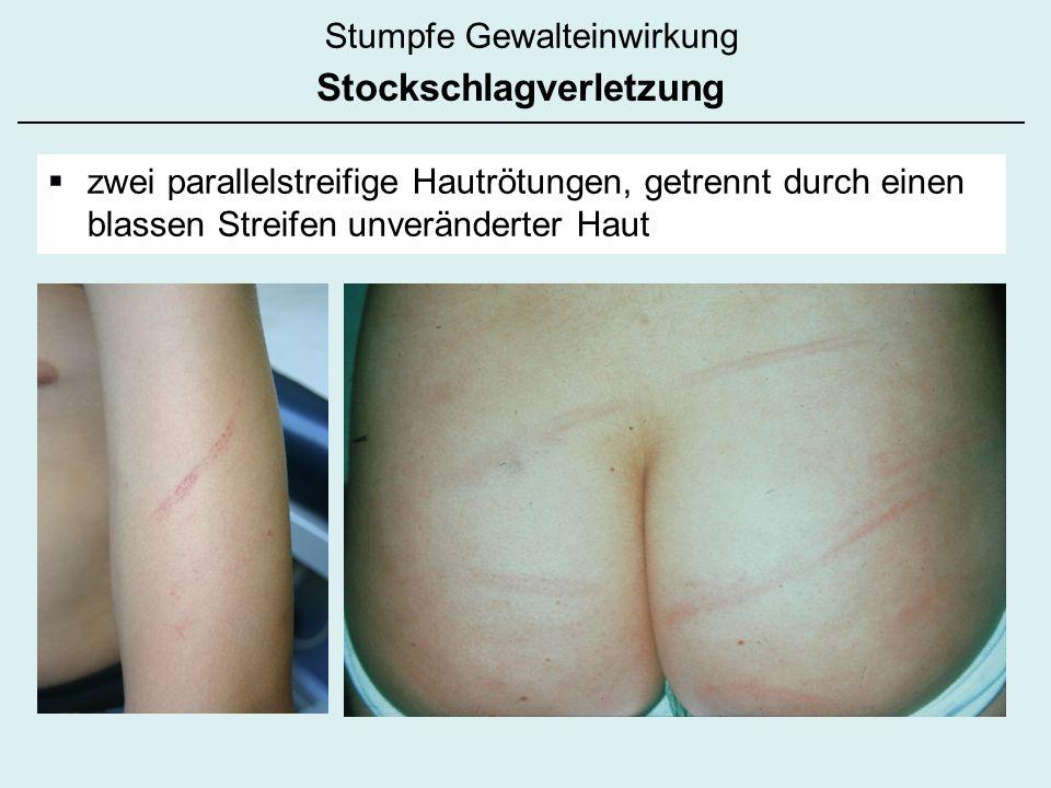 Stumpfe Gewalteinwirkung Stockschlagverletzung zwei parallelstreifige Hautrötungen, getrennt durch einen blassen Streifen unveränderter Haut