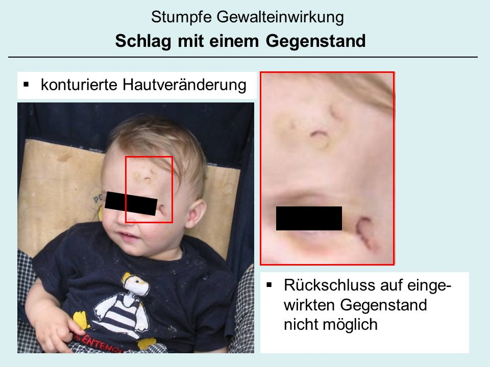 Stumpfe Gewalteinwirkung Schlag mit einem Gegenstand konturierte Hautveränderung Rückschluss auf einge- wirkten Gegenstand nicht möglich
