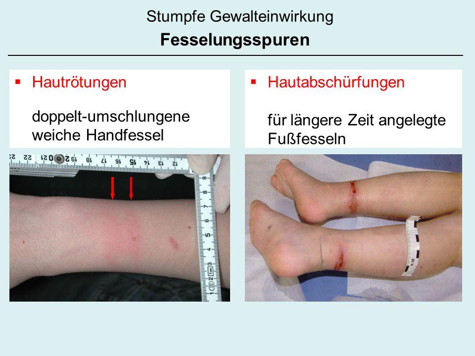 doppelt-umschlungene weiche Handfessel für längere Zeit angelegte Fußfesseln Hautrötungen Hautabschürfungen Stumpfe Gewalteinwirkung Fesselungsspuren