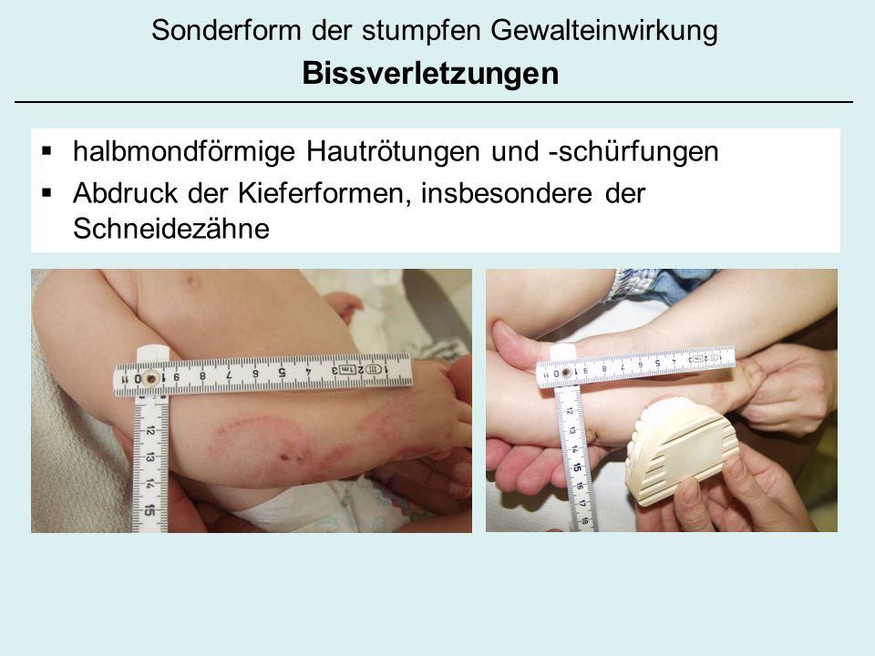 Sonderform der stumpfen Gewalteinwirkung Bissverletzungen halbmondförmige Hautrötungen und -schürfungen Abdruck der Kieferformen, insbesondere der Sch