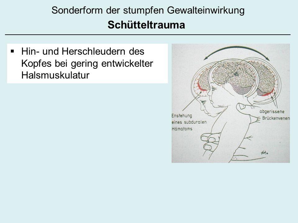 Hin- und Herschleudern des Kopfes bei gering entwickelter Halsmuskulatur Sonderform der stumpfen Gewalteinwirkung Schütteltrauma
